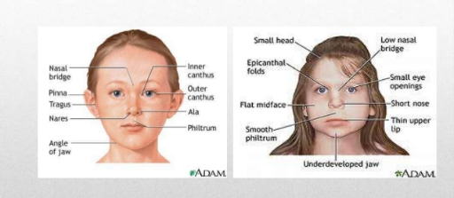 Fetal Alcohol Syndrome Free Books Childrens Stories Online
